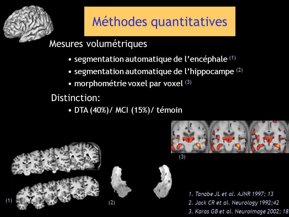 segmentation automatique de lencéphale (1) 1. Tanabe JL et al. AJNR 1997; 13 2. Jack CR et al. Neurology 1992;42 3. Karas GB et al. Neuroimage 2002; 1