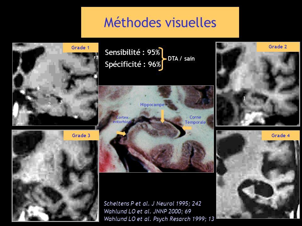 2 3 Corne Temporale Hippocampe Cortex entorhinal Scheltens P et al. J Neurol 1995; 242 Wahlund LO et al. JNNP 2000; 69 Wahlund LO et al. Psych Resarch