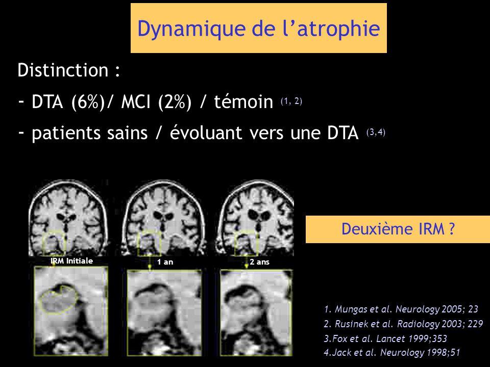 Dynamique de latrophie Distinction : - DTA (6%)/ MCI (2%) / témoin (1, 2) - patients sains / évoluant vers une DTA (3,4) 1. Mungas et al. Neurology 20