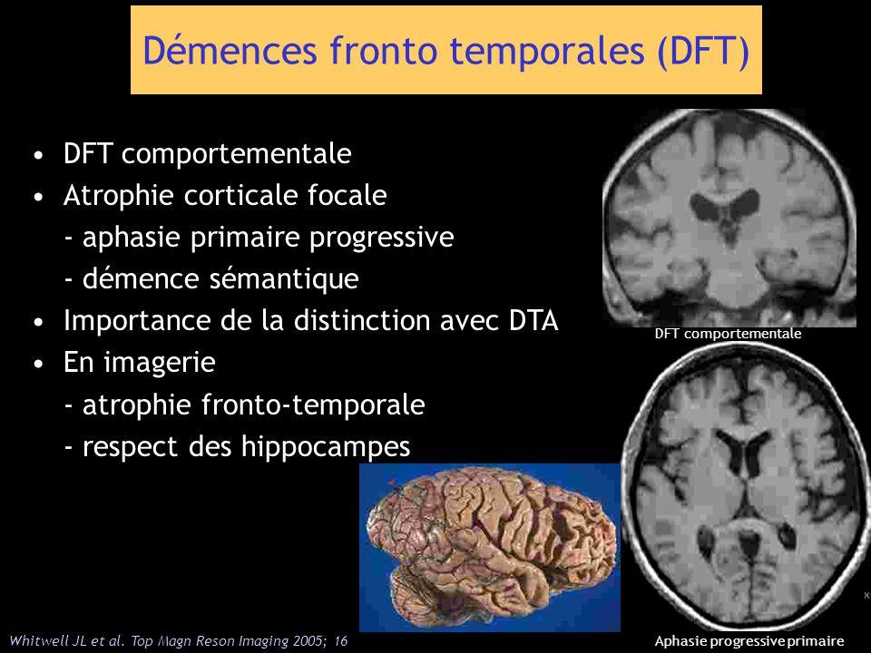 Démences fronto temporales (DFT) DFT comportementale Atrophie corticale focale - aphasie primaire progressive - démence sémantique Importance de la di