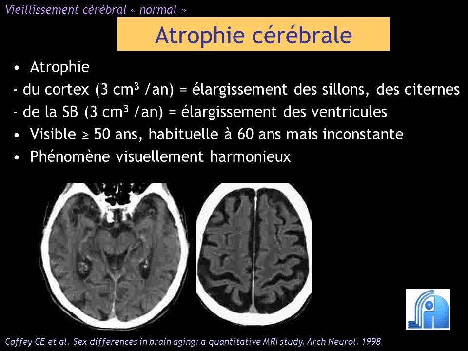 Atrophie - du cortex (3 cm 3 /an) = élargissement des sillons, des citernes - de la SB (3 cm 3 /an) = élargissement des ventricules Visible 50 ans, ha
