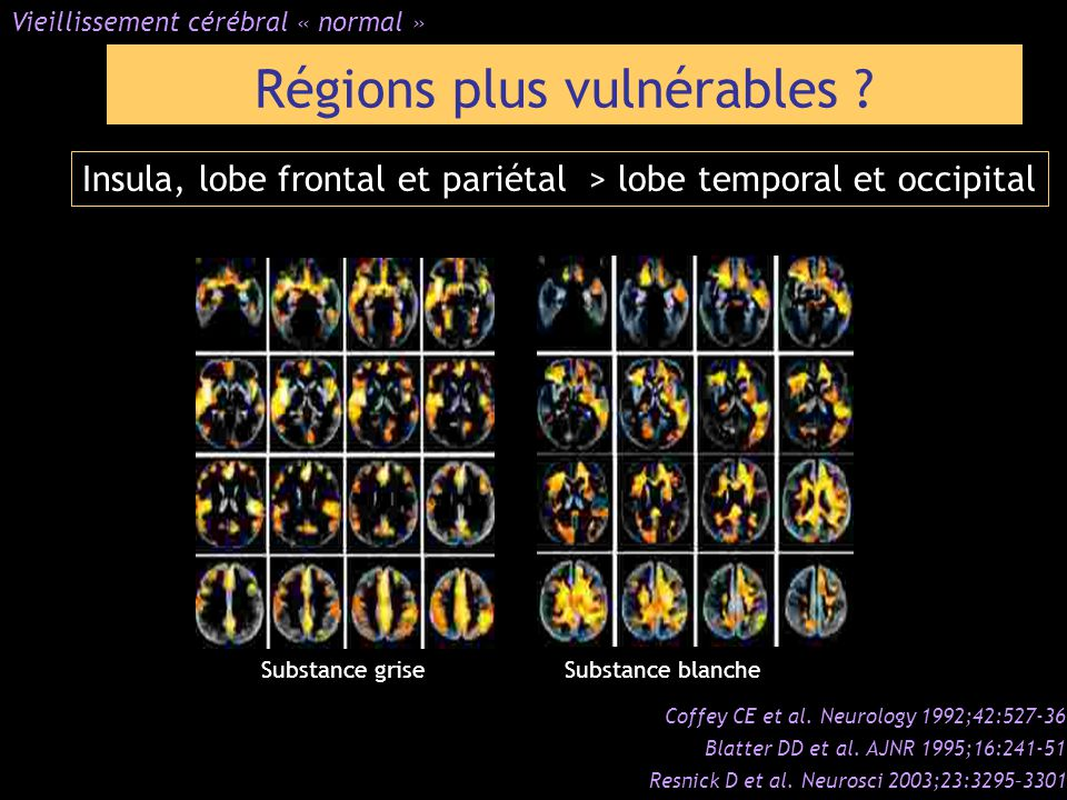 Régions plus vulnérables ? Vieillissement cérébral « normal » Coffey CE et al. Neurology 1992;42:527-36 Blatter DD et al. AJNR 1995;16:241-51 Resnick