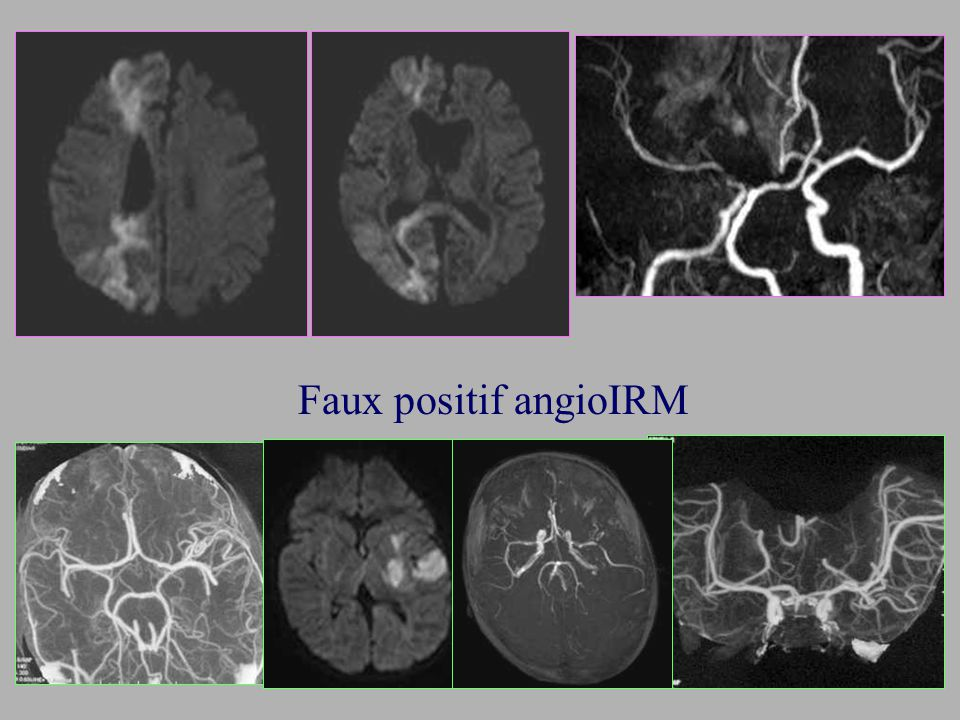 Faux positif angioIRM