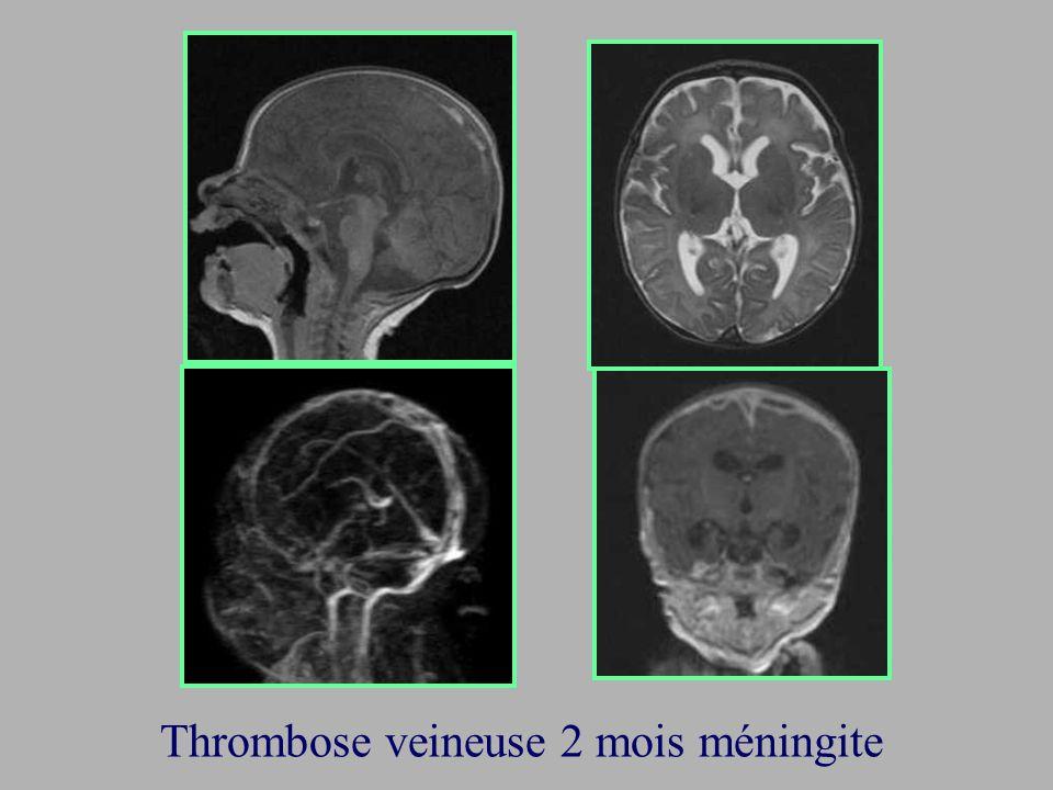 Thrombose veineuse 2 mois méningite
