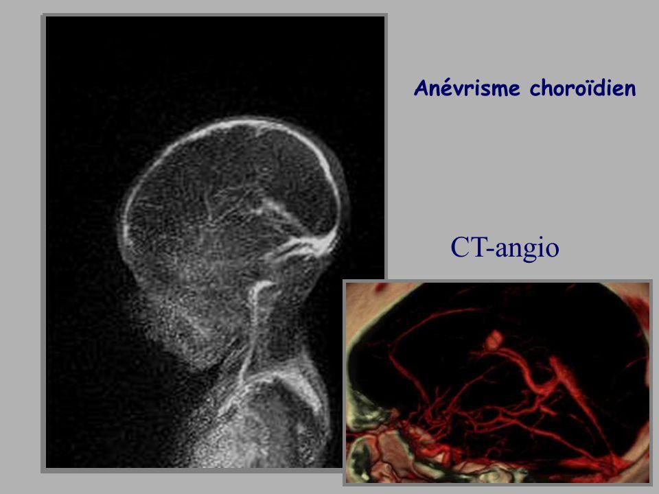 Anévrisme choroïdien CT-angio