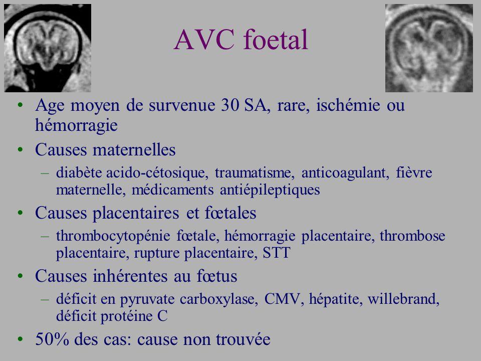 AVC foetal Age moyen de survenue 30 SA, rare, ischémie ou hémorragie Causes maternelles –diabète acido-cétosique, traumatisme, anticoagulant, fièvre maternelle, médicaments antiépileptiques Causes placentaires et fœtales –thrombocytopénie fœtale, hémorragie placentaire, thrombose placentaire, rupture placentaire, STT Causes inhérentes au fœtus –déficit en pyruvate carboxylase, CMV, hépatite, willebrand, déficit protéine C 50% des cas: cause non trouvée