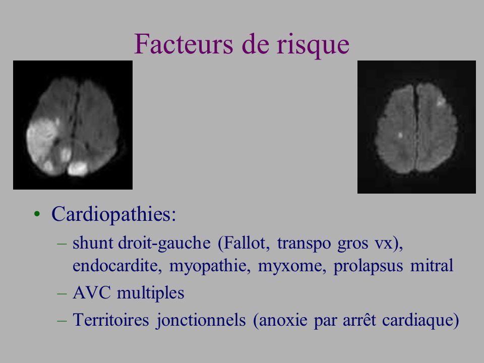 Facteurs de risque Cardiopathies: –shunt droit-gauche (Fallot, transpo gros vx), endocardite, myopathie, myxome, prolapsus mitral –AVC multiples –Territoires jonctionnels (anoxie par arrêt cardiaque)