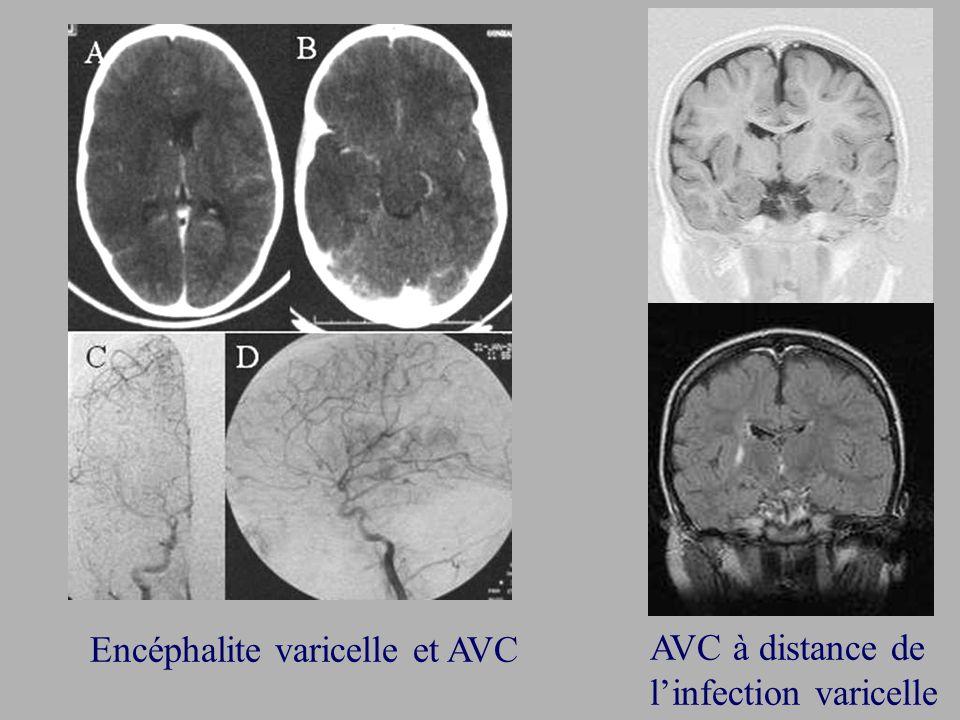 Encéphalite varicelle et AVC AVC à distance de linfection varicelle
