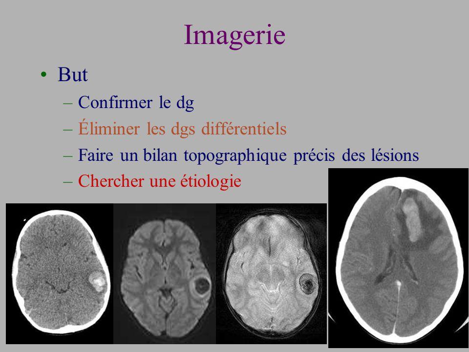 Imagerie But –Confirmer le dg –Éliminer les dgs différentiels –Faire un bilan topographique précis des lésions –Chercher une étiologie