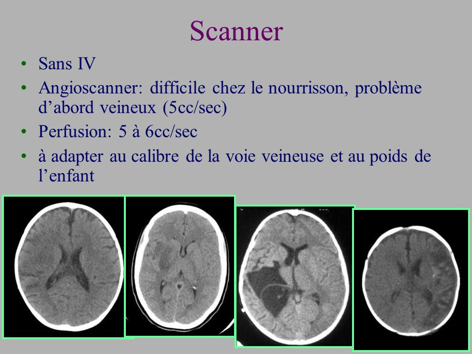 Scanner Sans IV Angioscanner: difficile chez le nourrisson, problème dabord veineux (5cc/sec) Perfusion: 5 à 6cc/sec à adapter au calibre de la voie veineuse et au poids de lenfant