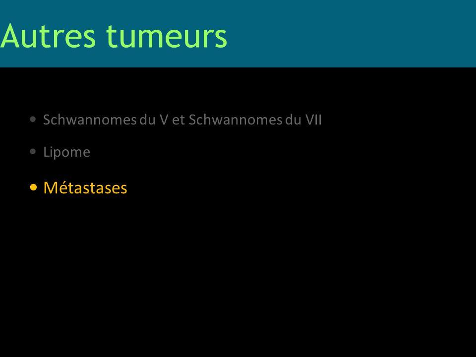 Schwannomes du V et Schwannomes du VII Lipome Métastases Autres tumeurs