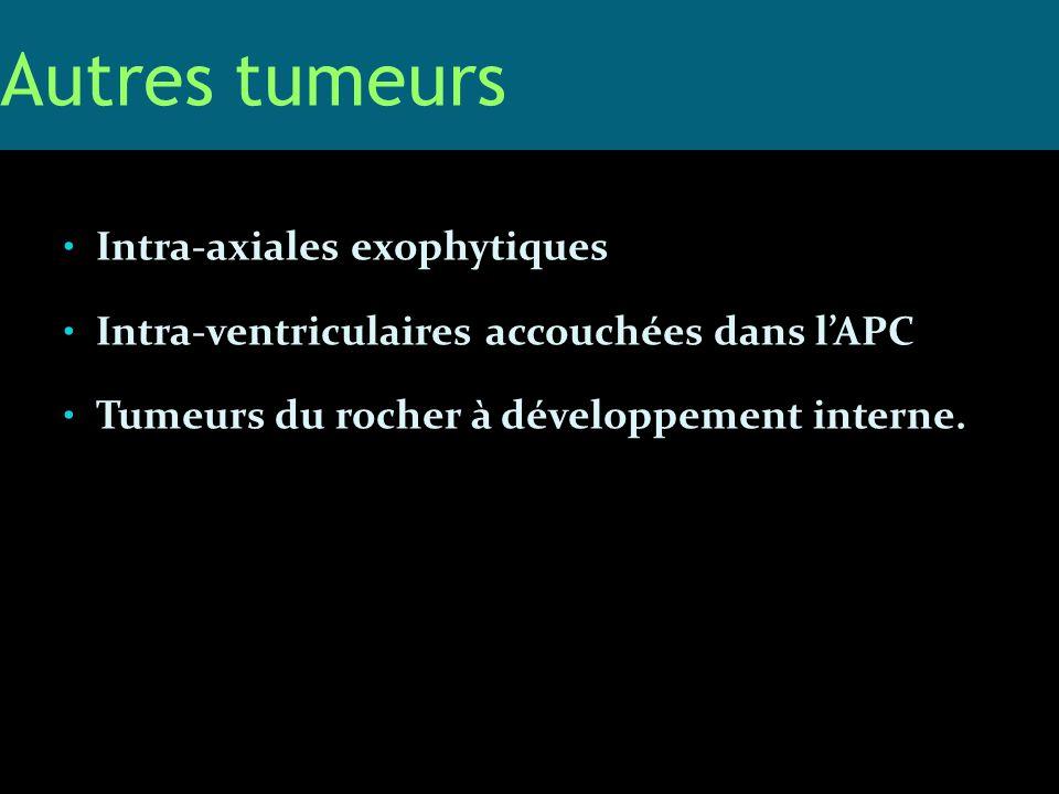 Intra-axiales exophytiques Intra-ventriculaires accouchées dans lAPC Tumeurs du rocher à développement interne. Autres tumeurs