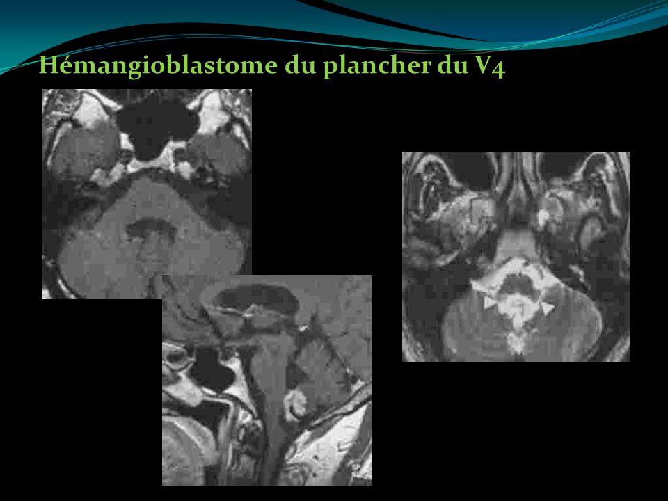 Hémangioblastome du plancher du V4