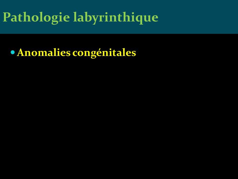 Anomalies congénitales Pathologie labyrinthique