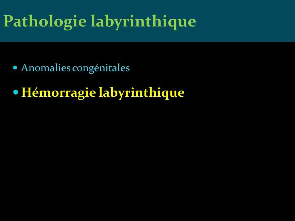 Anomalies congénitales Hémorragie labyrinthique Pathologie labyrinthique