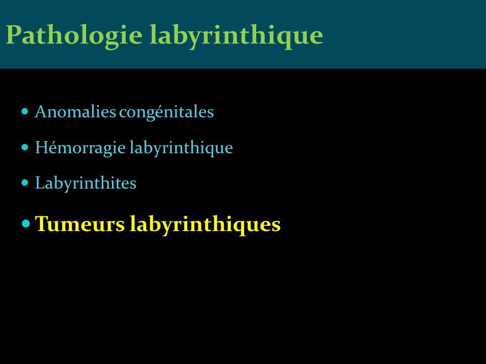 Anomalies congénitales Hémorragie labyrinthique Labyrinthites Tumeurs labyrinthiques Pathologie labyrinthique