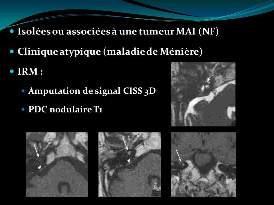 Isolées ou associées à une tumeur MAI (NF) Clinique atypique (maladie de Ménière) IRM : Amputation de signal CISS 3D PDC nodulaire T1