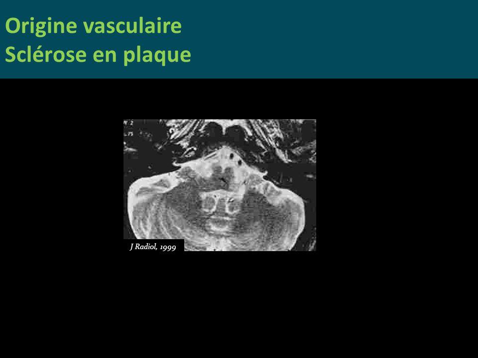 Origine vasculaire Sclérose en plaque J Radiol, 1999