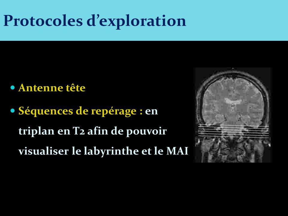Antenne tête Séquences de repérage : en triplan en T2 afin de pouvoir visualiser le labyrinthe et le MAI Protocoles dexploration