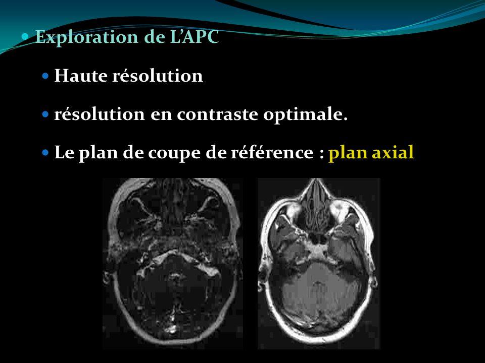 Exploration de LAPC Haute résolution résolution en contraste optimale. Le plan de coupe de référence : plan axial
