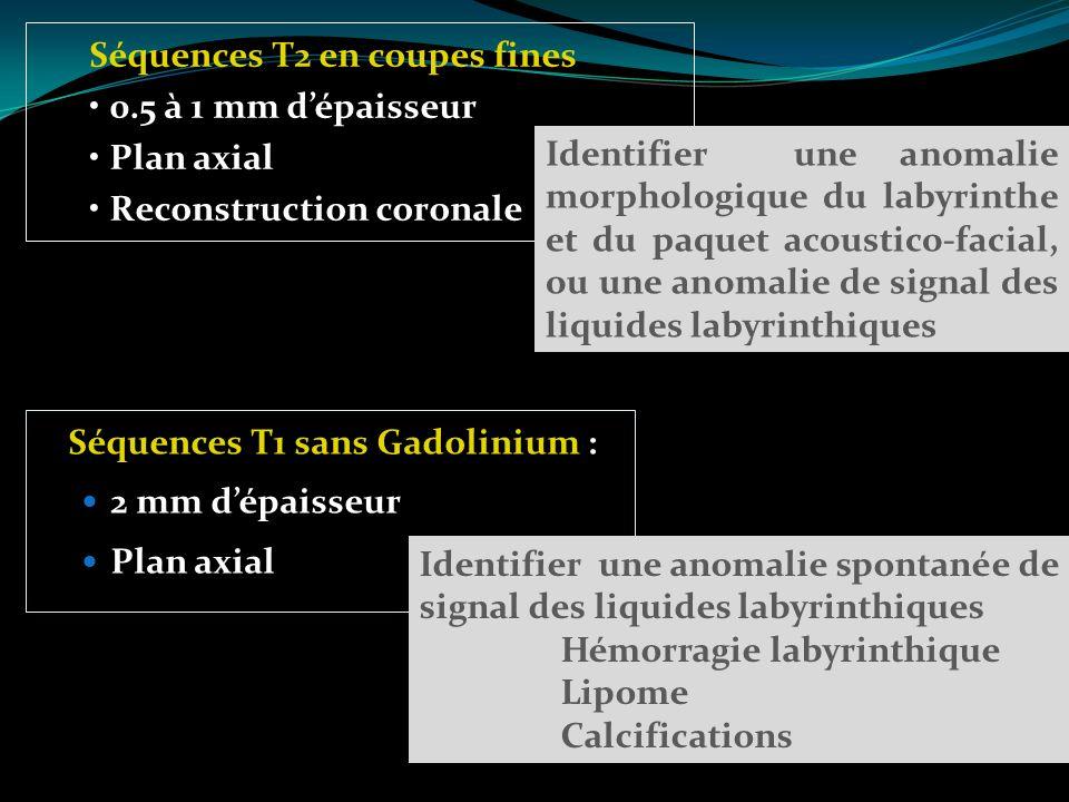 Séquences T1 sans Gadolinium : 2 mm dépaisseur Plan axial Séquences T2 en coupes fines 0.5 à 1 mm dépaisseur Plan axial Reconstruction coronale Identi