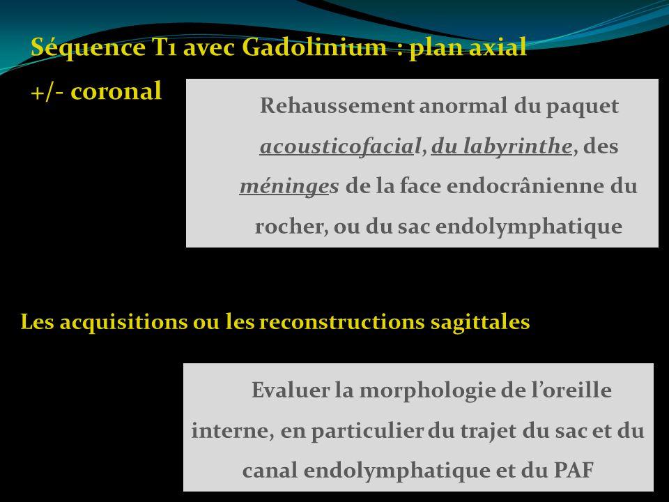 Les acquisitions ou les reconstructions sagittales Séquence T1 avec Gadolinium : plan axial +/- coronal Rehaussement anormal du paquet acousticofacial
