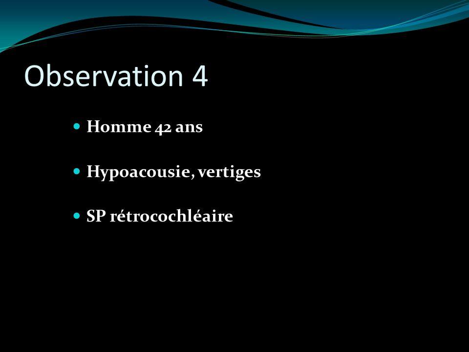 Observation 4 Homme 42 ans Hypoacousie, vertiges SP rétrocochléaire