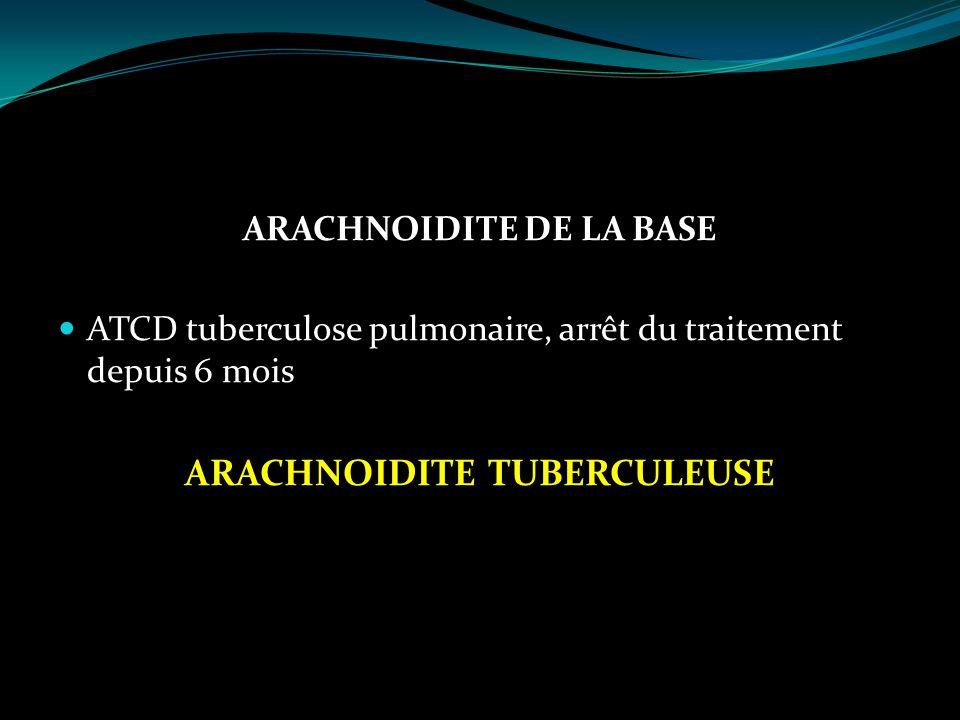 ARACHNOIDITE DE LA BASE ATCD tuberculose pulmonaire, arrêt du traitement depuis 6 mois ARACHNOIDITE TUBERCULEUSE
