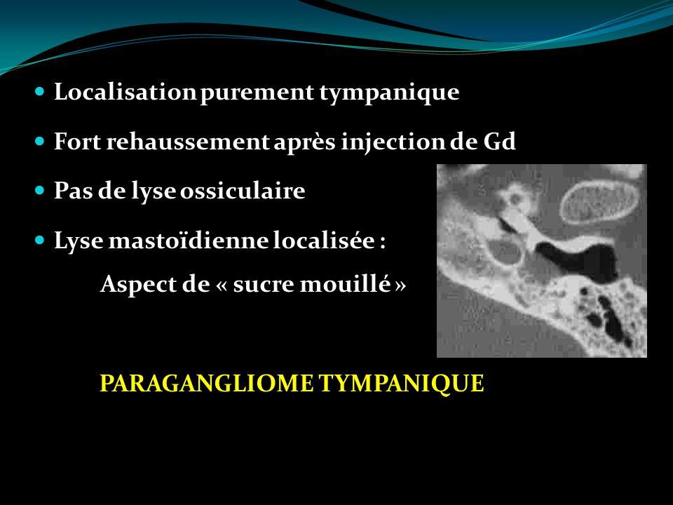 Localisation purement tympanique Fort rehaussement après injection de Gd Pas de lyse ossiculaire Lyse mastoïdienne localisée : Aspect de « sucre mouil