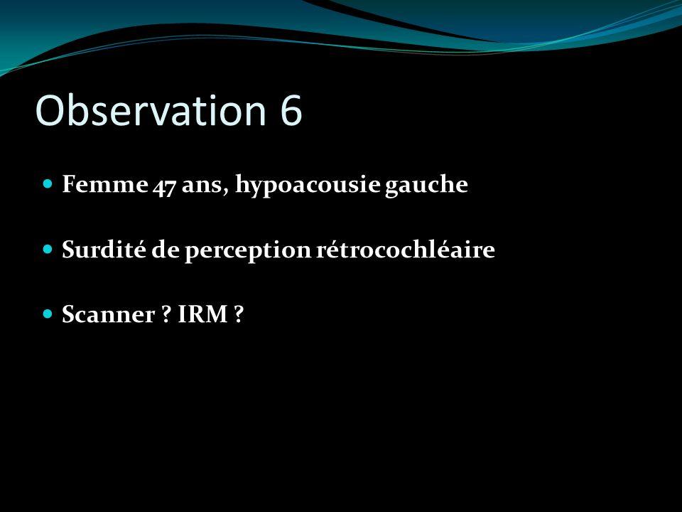 Observation 6 Femme 47 ans, hypoacousie gauche Surdité de perception rétrocochléaire Scanner ? IRM ?