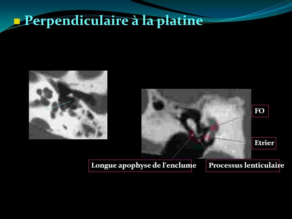 Perpendiculaire à la platine FO Etrier Longue apophyse de l'enclumeProcessus lenticulaire
