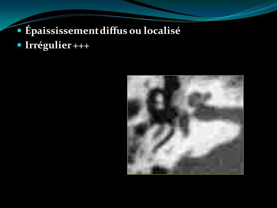 Épaississement diffus ou localisé Irrégulier +++