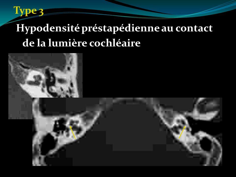 Type 3 Hypodensité préstapédienne au contact de la lumière cochléaire Hypodensité préstapédienne au contact de la lumière cochléaire