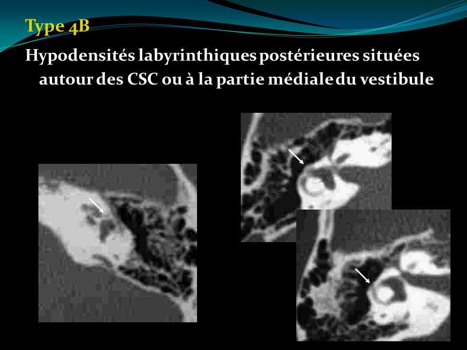Type 4B Hypodensités labyrinthiques postérieures situées autour des CSC ou à la partie médiale du vestibule