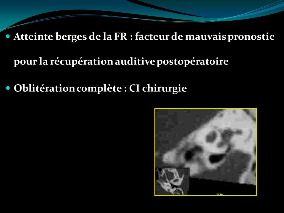 Atteinte berges de la FR : facteur de mauvais pronostic pour la récupération auditive postopératoire Oblitération complète : CI chirurgie