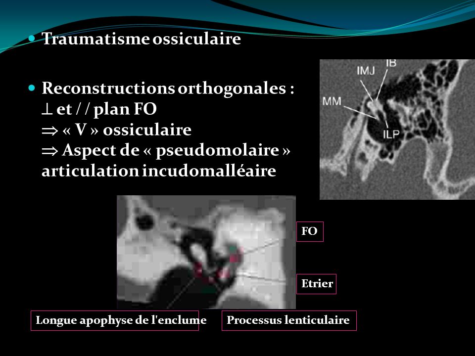 Traumatisme ossiculaire Reconstructions orthogonales : et plan FO « V » ossiculaire Aspect de « pseudomolaire » articulation incudomalléaire FO Etrier