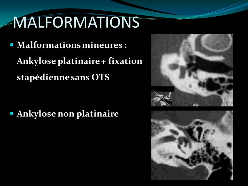 MALFORMATIONS Malformations mineures : Ankylose platinaire + fixation stapédienne sans OTS Ankylose non platinaire