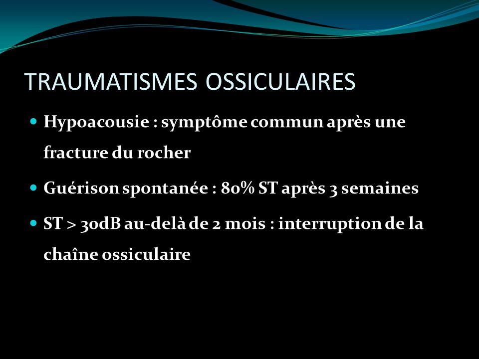 TRAUMATISMES OSSICULAIRES Hypoacousie : symptôme commun après une fracture du rocher Guérison spontanée : 80% ST après 3 semaines ST > 30dB au-delà de