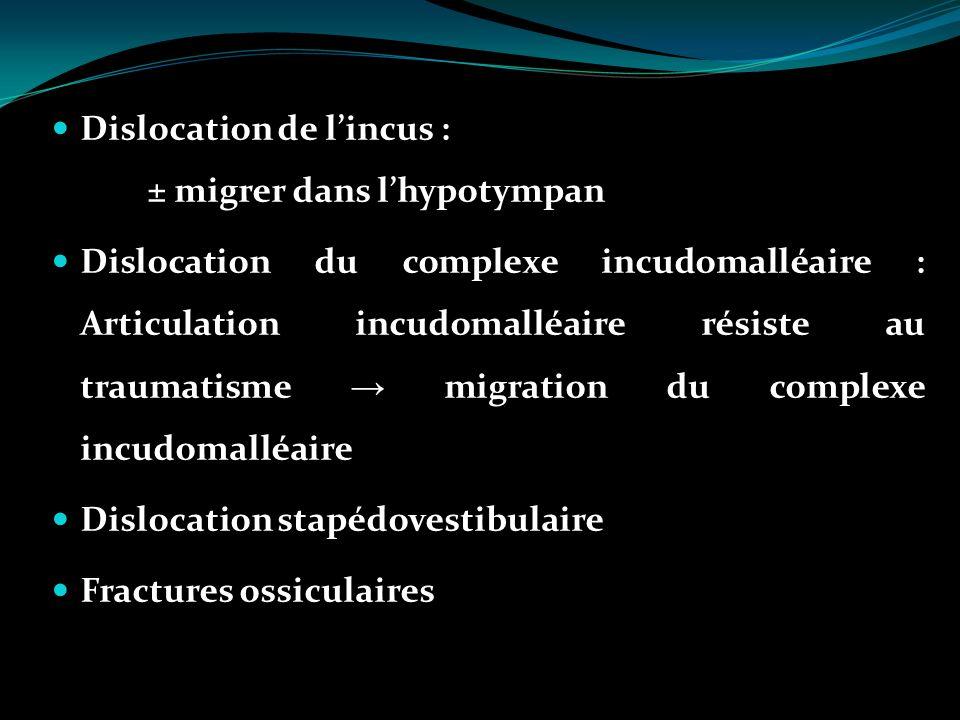 Dislocation de lincus : ± migrer dans lhypotympan Dislocation du complexe incudomalléaire : Articulation incudomalléaire résiste au traumatisme migrat
