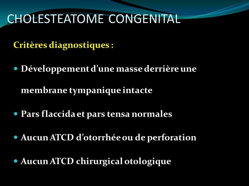 CHOLESTEATOME CONGENITAL Critères diagnostiques : Développement dune masse derrière une membrane tympanique intacte Pars flaccida et pars tensa normal