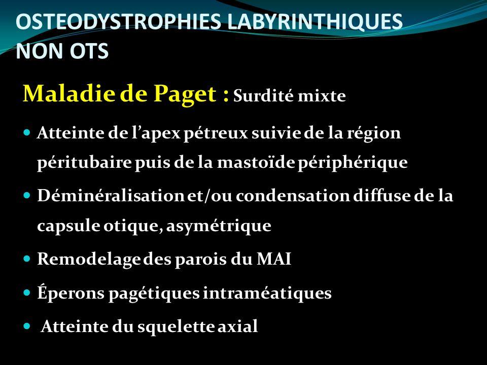 OSTEODYSTROPHIES LABYRINTHIQUES NON OTS Maladie de Paget : Surdité mixte Atteinte de lapex pétreux suivie de la région péritubaire puis de la mastoïde