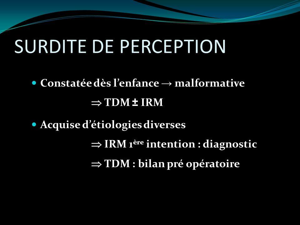 SURDITE DE PERCEPTION Constatée dès lenfance malformative TDM ± IRM Acquise détiologies diverses IRM 1 ère intention : diagnostic TDM : bilan pré opér