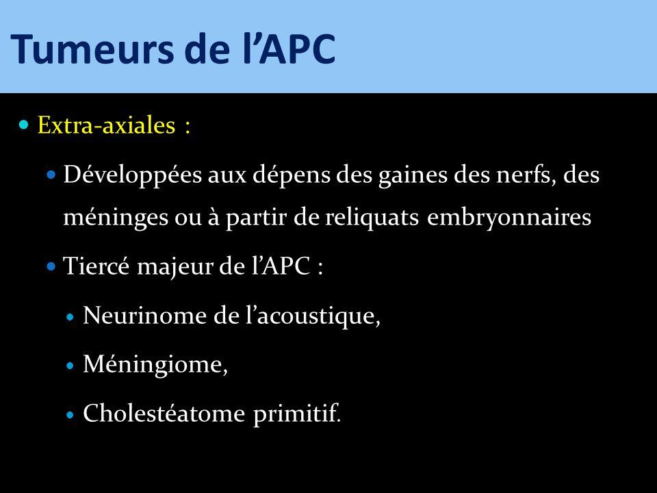 Extra-axiales : Développées aux dépens des gaines des nerfs, des méninges ou à partir de reliquats embryonnaires Tiercé majeur de lAPC : Neurinome de