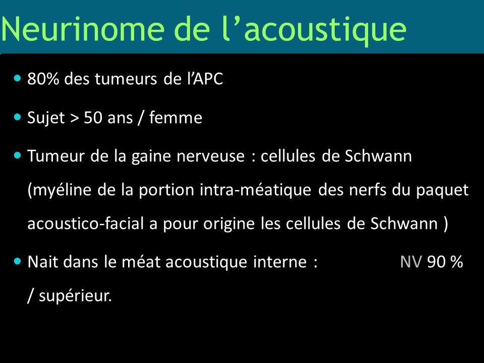 Neurinome de lacoustique 80% des tumeurs de lAPC Sujet > 50 ans / femme Tumeur de la gaine nerveuse : cellules de Schwann (myéline de la portion intra