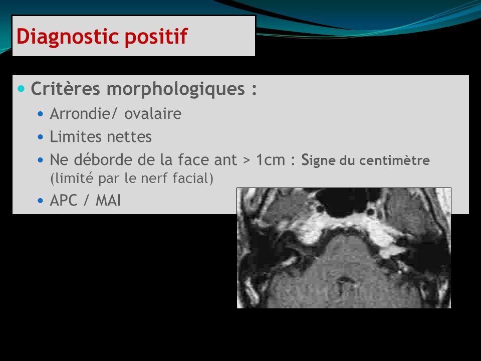 Critères morphologiques : Arrondie/ ovalaire Limites nettes Ne déborde de la face ant > 1cm : S igne du centimètre (limité par le nerf facial) APC / M