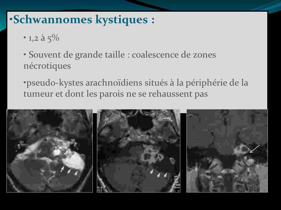 Schwannomes kystiques : 1,2 à 5% Souvent de grande taille : coalescence de zones nécrotiques pseudo-kystes arachnoïdiens situés à la périphérie de la