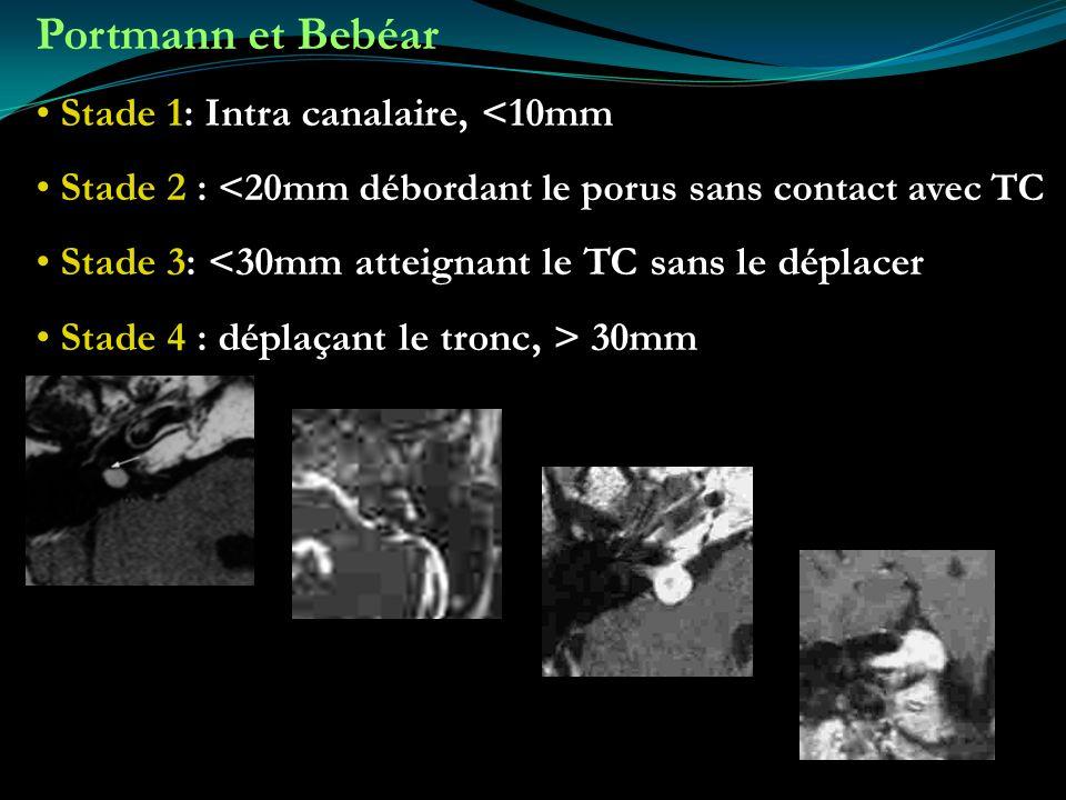Portmann et Bebéar Stade 1: Intra canalaire, <10mm Stade 2 : <20mm débordant le porus sans contact avec TC Stade 3: <30mm atteignant le TC sans le dép