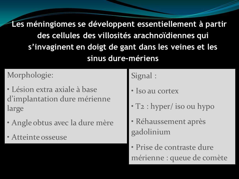 Les méningiomes se développent essentiellement à partir des cellules des villosités arachnoïdiennes qui sinvaginent en doigt de gant dans les veines e