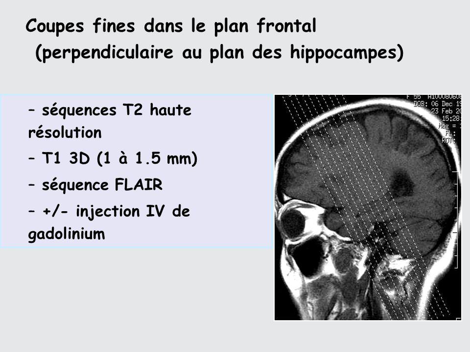 Coupes fines dans le plan frontal (perpendiculaire au plan des hippocampes) – séquences T2 haute résolution – T1 3D (1 à 1.5 mm) – séquence FLAIR – +/