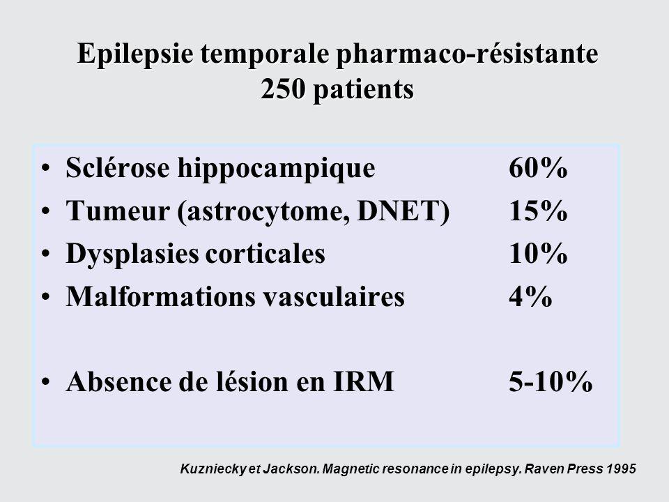 Epilepsie temporale pharmaco-résistante 250 patients Sclérose hippocampique60% Tumeur (astrocytome, DNET)15% Dysplasies corticales10% Malformations va